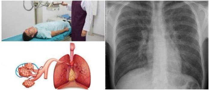 Parenquima Pulmonar: Definición y Anatomia, Tipos, Síntomas, Causas ...
