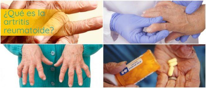 que es una artritis reumatoidea autoinmune