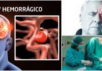 consecuencias de un acv hemorrágico en la arteria cerebral posterior