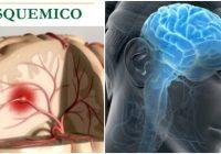 el acv isquemico y la arteria cerebral media