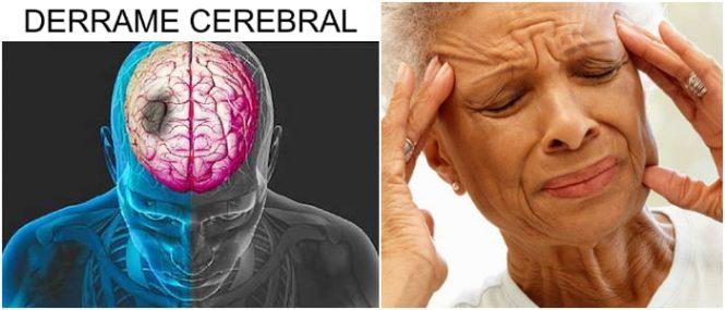 que es un infarto cerebral agudo