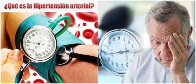 la presión arterial alta e hipertensión gestacional