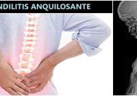 artritis inflamatoria que afecta la columna vertebral