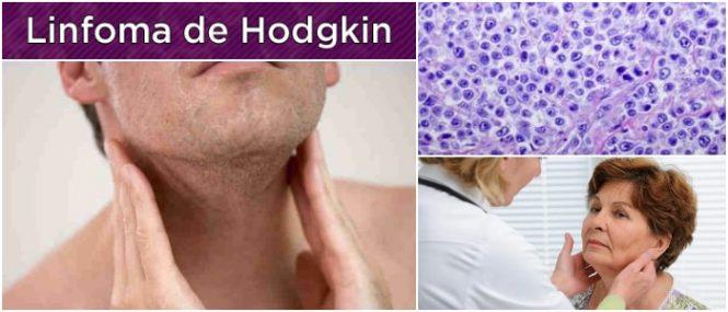 ganglios linfáticos del cuello
