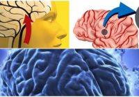 que es la encefalopatía hipertensiva y tratamiento