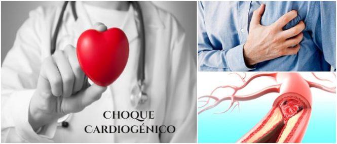 choque cardíaco