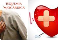vasos sanguíneos del corazón