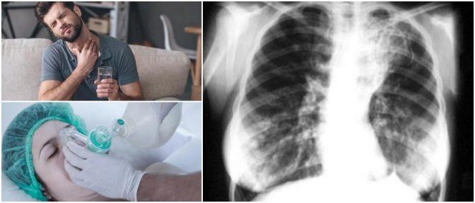 dilatación permanente de uno o varios bronquio
