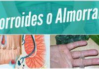 remedios naturales y tratamiento para las hemorroides o almorranas