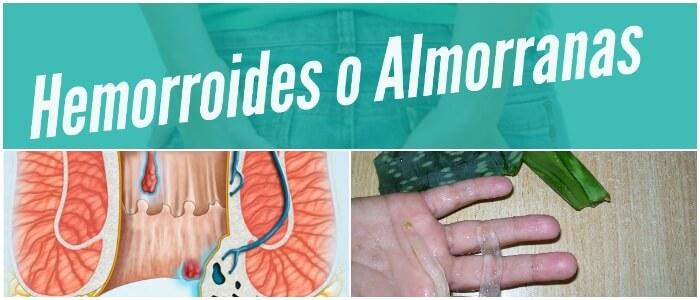 Almorranas O Hemorroides Causas Tipos Síntomas Prevención Diagnóstico Y Tratamiento Arriba Salud