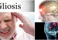 que es la gliosis isquemica