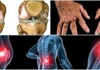 que es la osteoartrosis acromioclavicular