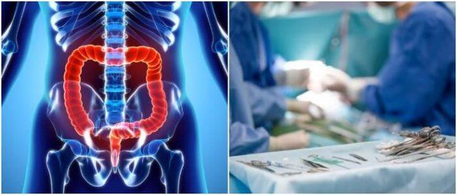 enfermedades inflamatorias del intestino