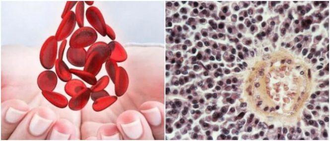 disminución de las células sanguíneas