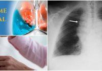 agua en los pulmones
