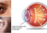 aumento patológico de la presión intraocular