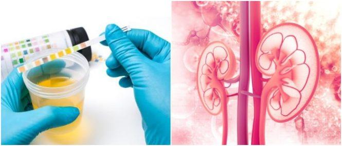 proteinuria causas y sintomas