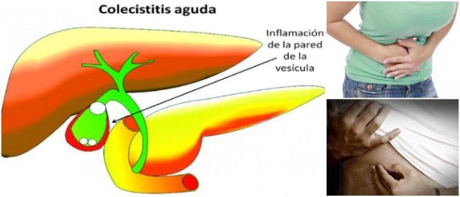 inflamación de la vesícula biliar
