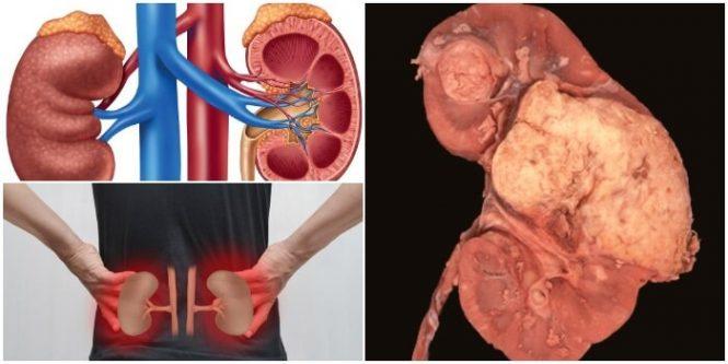 Que es un Angiomiolipoma Renal: Causas, Síntomas, Clasificación ...