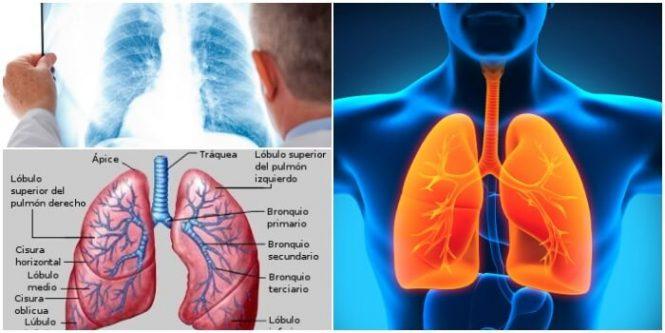 Hilio Pulmonar: Anatomía, Anomalías y Enfermedades – Arriba Salud