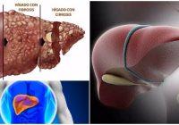 insuficiencia hepática