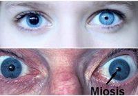 Que causa la miosis