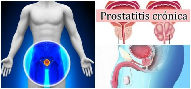 Prostatitis Crónica – Glandula Prostatica: ¿Qué Es? Causas ...