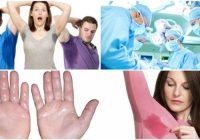 Definición de simpatectomia para la sudoración