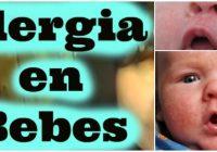 alergias en bebes amamantados