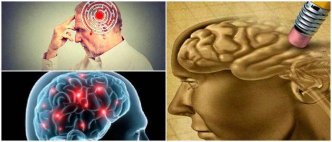 Amnesia Como Detectarla Tipos Síntomas Causas Diagnóstico Y Tratamiento Arriba Salud