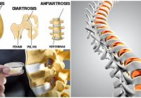 anfiartrosis en las articulaciones