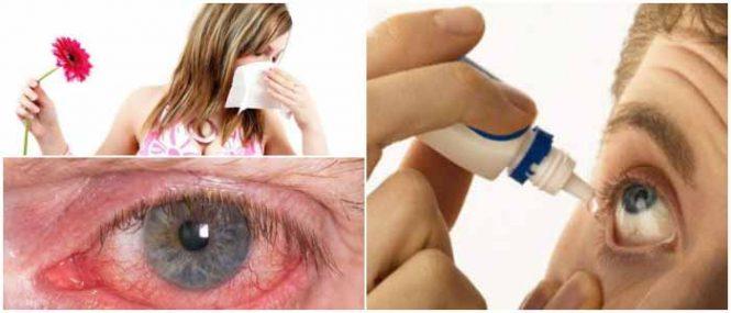 antihistaminicos solucion oftalmica