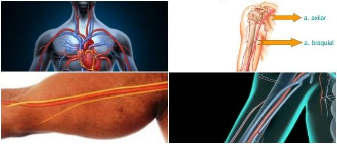 Arteria Braquial: Definición, Ramas De La Arteria, Traumatismo ...