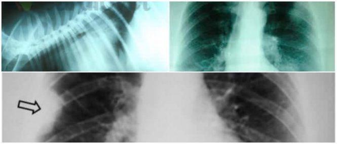 broncograma aereo neumonia