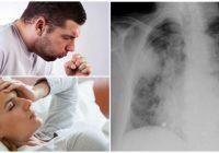 bronconeumonía atípica