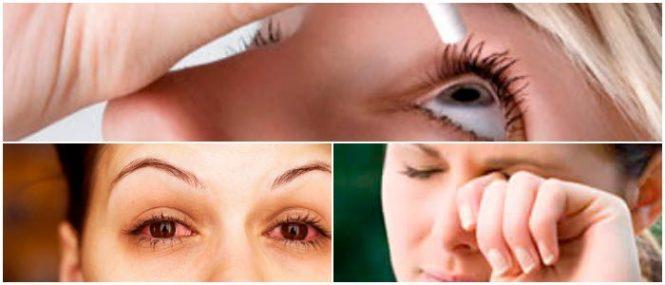 para que sirve el cloranfrnicol oftalmico