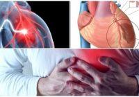 preinfarto asintomatico