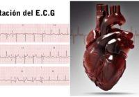 electrocardiograma interpretacion