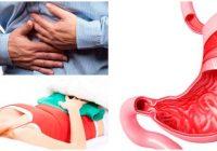 definición medica de epigastralgia