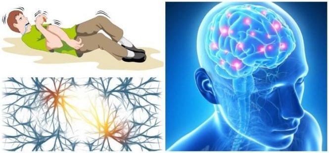 tratamiento y causas de la epilepsia