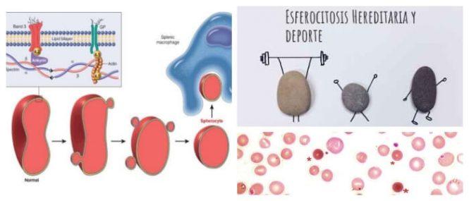 definición de esferocitosis