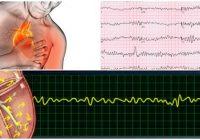 Definción de fibrilacion ventricular