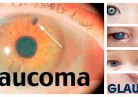 definicion de glaucoma congénito