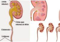 hidronefrosis idiopática en adultos