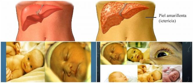hiperbilirrubinemia en adultos