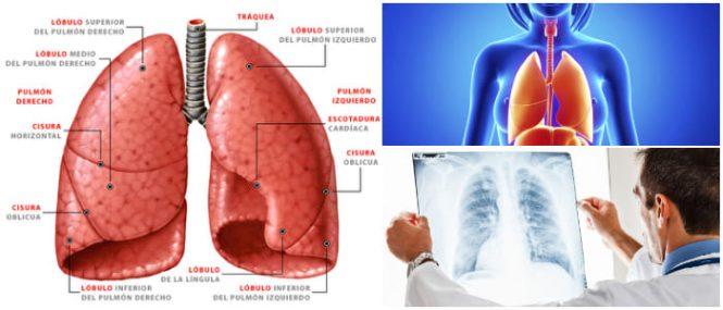 Lobulos Pulmonares: Función, Segmentos, Fosas Pulmonares, Anatomía y ...