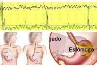 manometria esofagica indicaciones