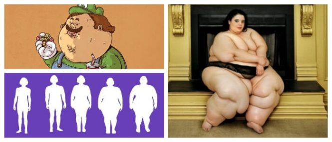 obesidad morbida causas