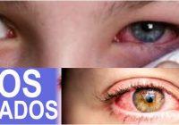 ojos irritados alergia