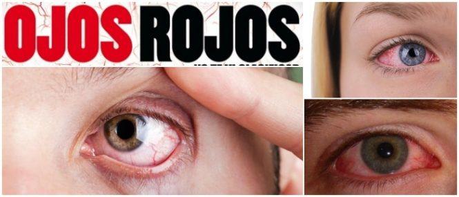 ojos rojos dolor de cabeza